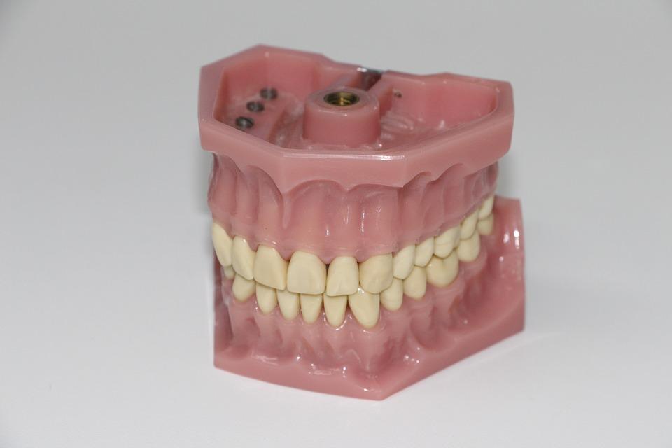 Comment prévenir et traiter l'érosion dentaire ?