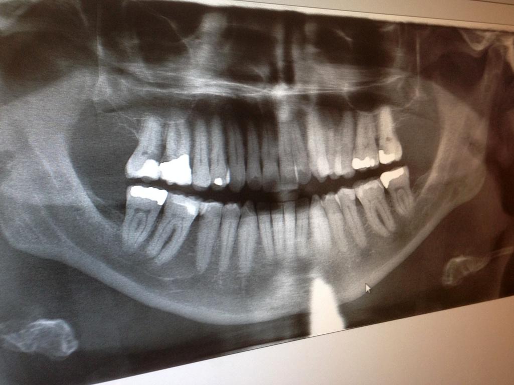 Qu'est-ce que le plombage dentaire ?